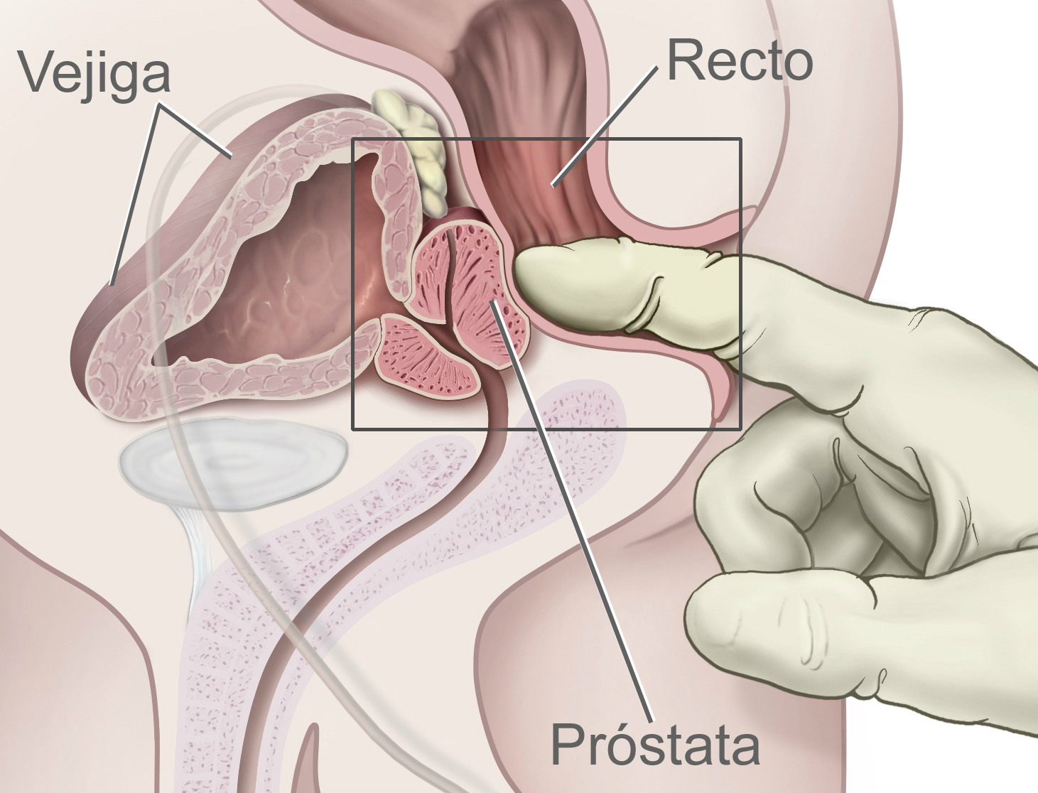 Indicadores de próstata en análisis de sangre