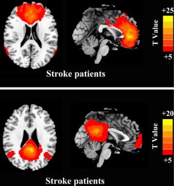 図:脳幹梗塞のデフォルト・モード・ネットワーク