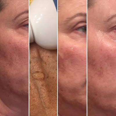 Gel Miscelar, Elisabeth Vargas Cosmetic, rutina limpieza, limpieza facial, cosmetica profesional, alta cosmética, un lujo en tu piel,
