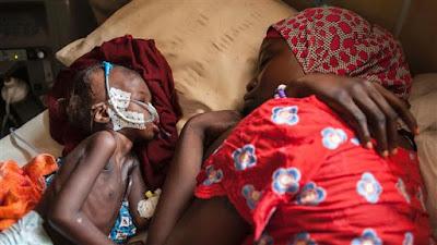 PBB: 75 Ribu Anak Nigeria Hadapi Ancaman Kematian