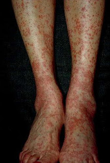 Hepatitis C rashes on the patient's lower extremities along with yellowish discoloration of the skin pictures