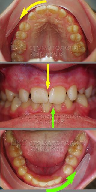 Несовпадение центра зубов