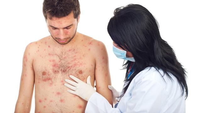 Pernah Derita Cacar Air Diusia Remaja, Awas Cacar Air Diusia Renta Lebih Berbahaya Dapat Berubah Jadi Hepatitis