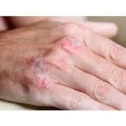 Image Gatal gatal di tangan