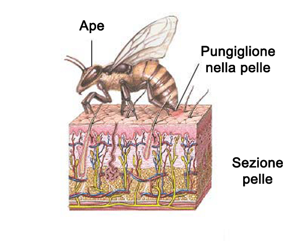 bee sting reactions local systemic and toxic drgreenecom - 600×480