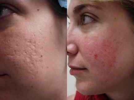 le traitement des cicatrices d 39 acn l 39 acn. Black Bedroom Furniture Sets. Home Design Ideas