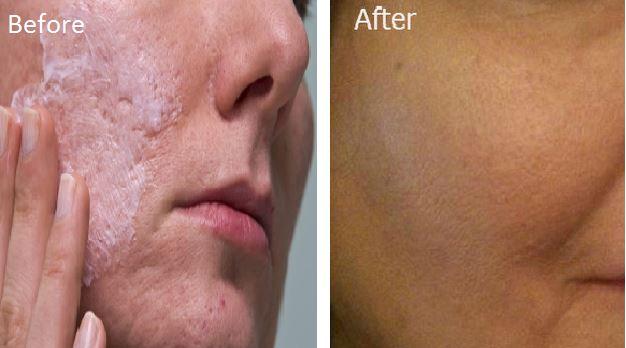 peau grasse pores dilatés solution