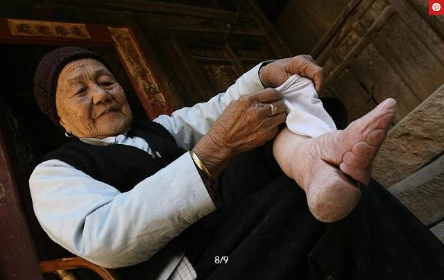 شاهد.. عادة صينية عمرها ألف عام تترك آثاراً مروعة على أقدام النساء