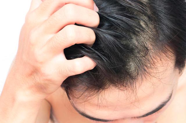 21 Penjelasan Berkedut, Gatal untuk Mengapa Kulit Kepala Anda Gatal