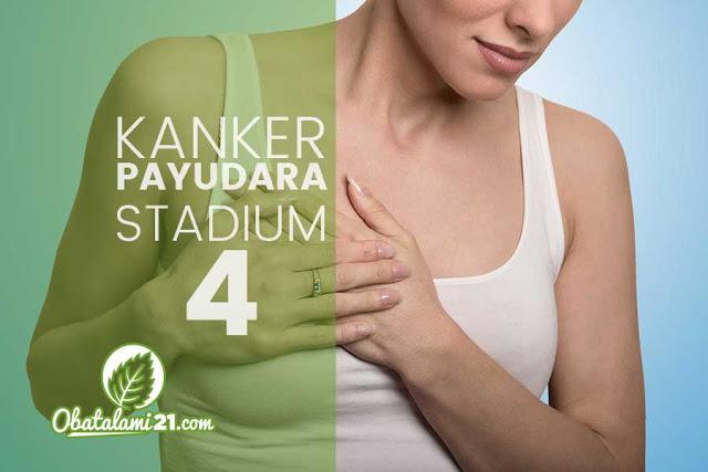 Apakah Kanker Payudara Stadium 4 Bisa Sembuh