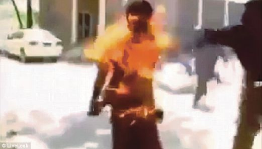 Badan Dijilat Api Kerana Telefon Bimbit Tiba-tiba Terbakar