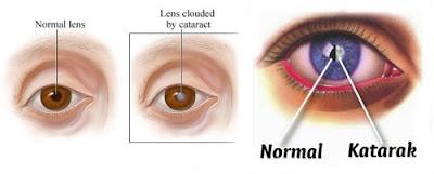 Obat Herbal Katarak, Paling Ampuh Mengatasi Mata Katarak Secara Alami Dan Aman Sampai Sembuh Total Tanpa Efek Samping : Eye Care Softgel Green World Solusinya