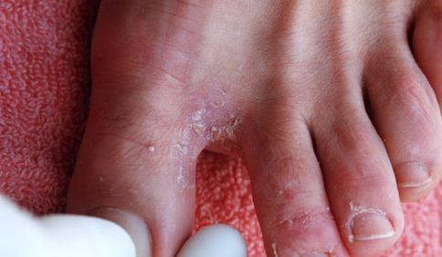Toe web infection