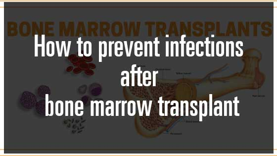 How to Prevent Infections after Bone Marrow Transplant : WikiHealthBlog