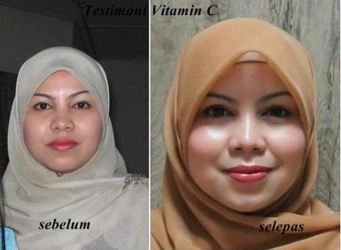 Image result for TESTIMONI VITAMIN C