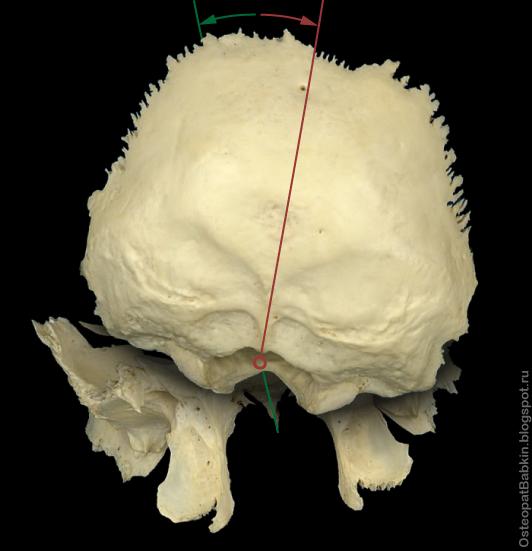 На схеме представлено положение затылочной и клиновидной костей при правосторонней торсии