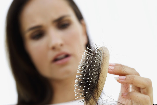 hair loss ladies