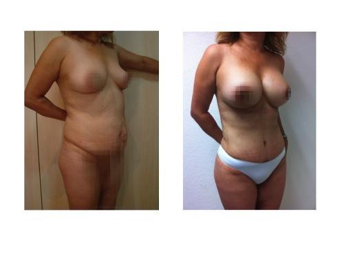 antes y despues de una cirugia plastica de abdomen con implantes de senos en Salutaris Guadalajara