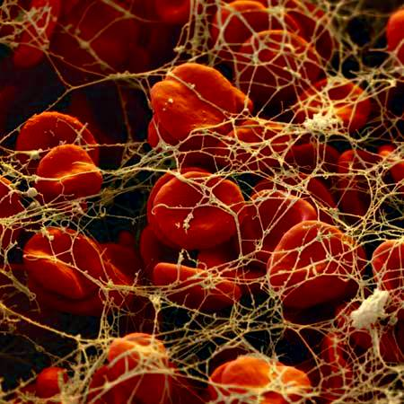 Glóbulos rojos (eritrocitos) atrapados en una malla de hilos de fibrina