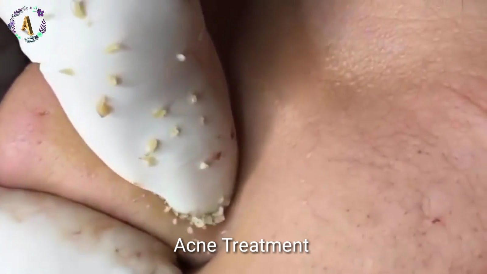 The Best Acne Treatment Blog Cystic Acne Treatment With Relaxing Music Sleeping Music 3 กดส วอ ดต น
