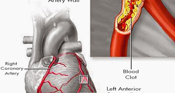 Clean Your Arteries Using 3 Ingredients