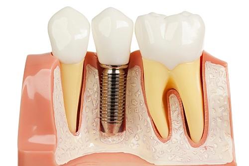 Kết quả hình ảnh cho Nhiễm trùng vùng cấy ghép răng implant