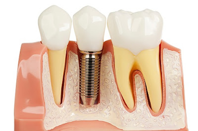 tư vấn cấy ghép răng implant -3