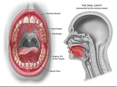 penyebab kanker mulut, gejala kanker mulut, cara mengobati kanker mulut