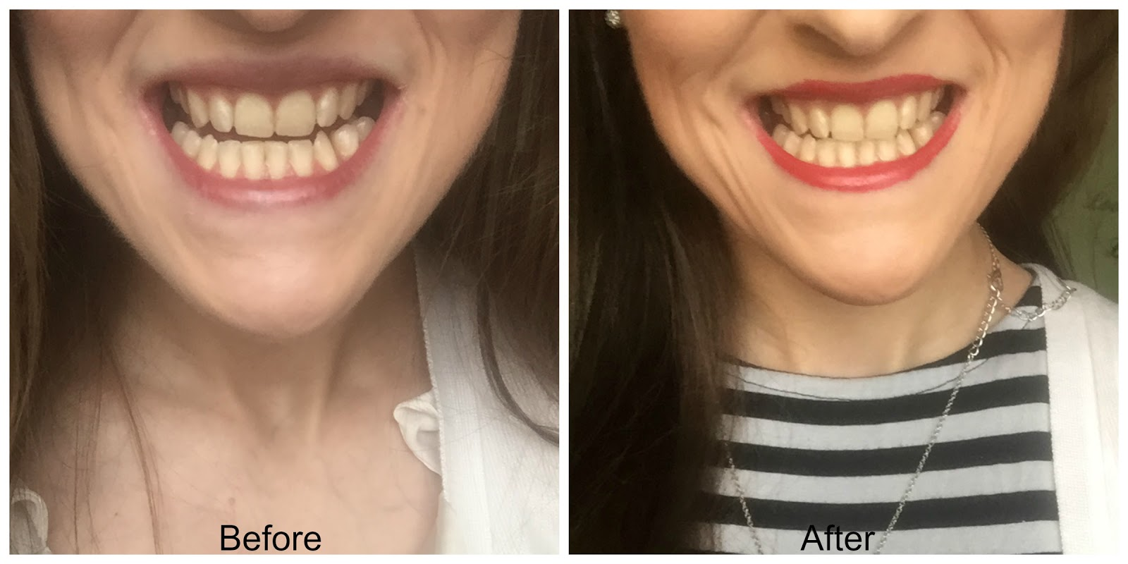 before and after smilelab tooth whitening strips