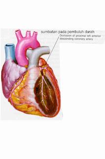 alternative jantung