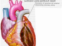 Manfaat Olahraga Untuk Mengurangi Resiko Serangan Jantung