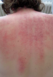 gua sha for migraine