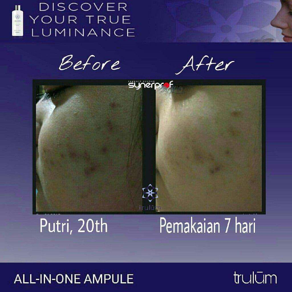 Jual Trulum Skincare Synergy Di Parigi Barat WA: 08112338376