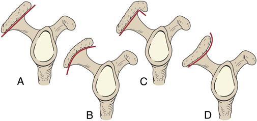 pt rextify acromial types 各種形狀的acromion