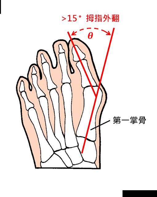 好痛痛 拇趾外翻 角度 第一掌骨 趾骨