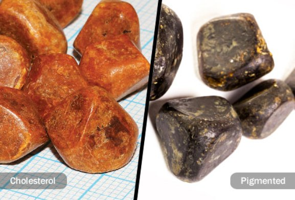 Types of Gallstones