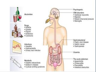 emesis-www.healthnote25.com