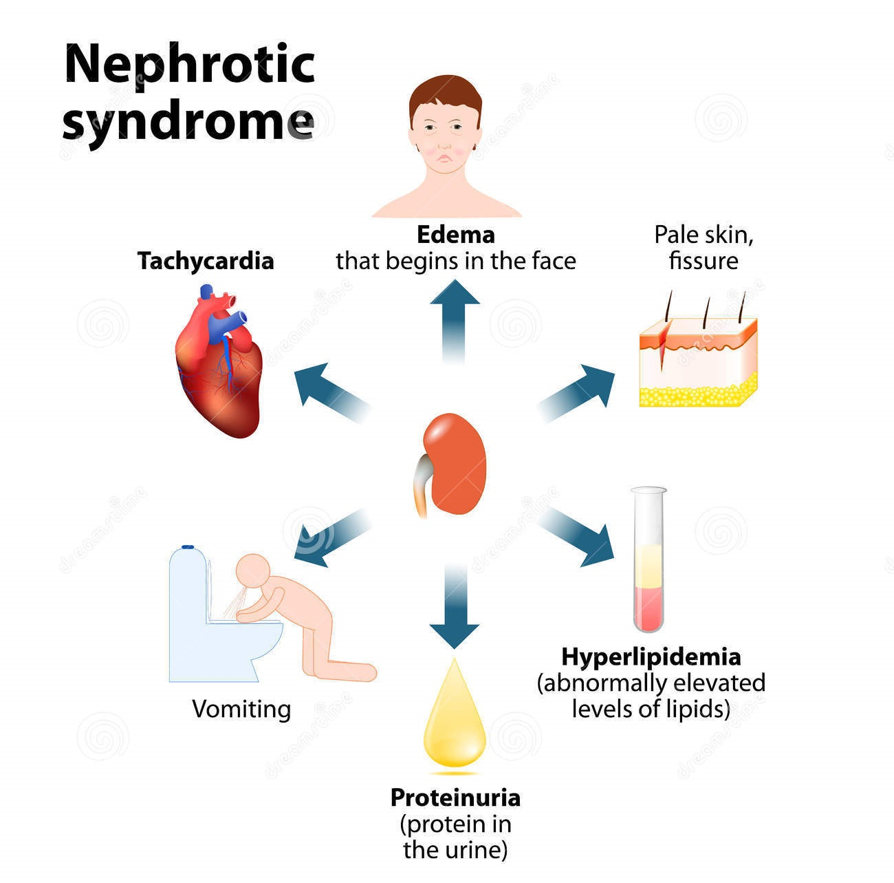 nephrotic syndrome essay Nephrotic syndrome is diagnosed through proteinuria while diabetic nephropathy is the commonest cause of nephrotic syndrome, membranous glomerulopathy (nephropathy) is the second highest cause of nephrotic syndrome.