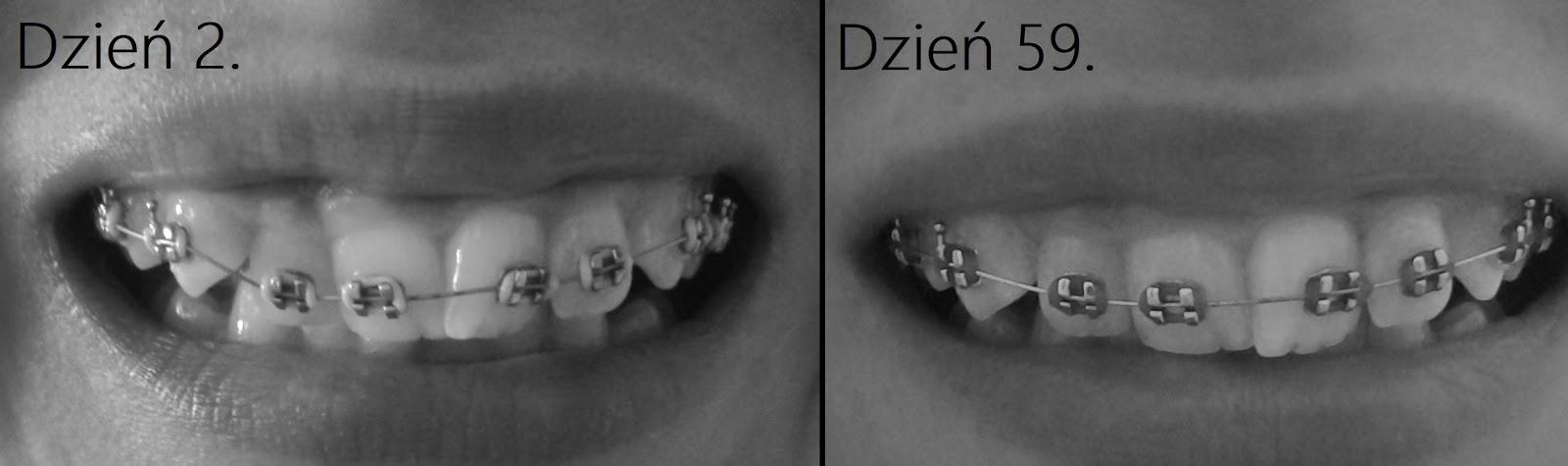 Zadrutowana, czyli moje początki z aparatem ortodontycznym