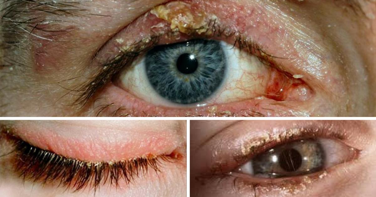 Obat Untuk Mata Blepharitis