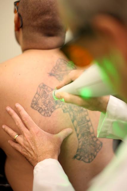 Homeboy Stories Ya Stuvo Tattoo Removal