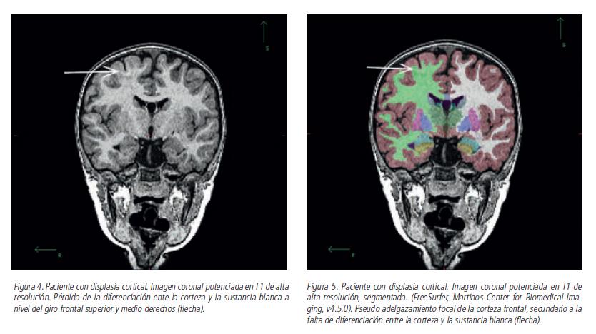 ESTRUCTURA DEL CEREBRO NORMAL EN RESONANCIA   ¿Que es la epilepsia?
