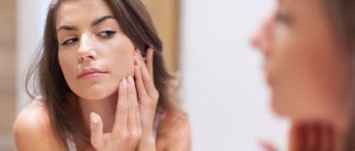 tips ampuh mengatasi wajah kering dan berjerawat dengan cepat menggunakan cara alami