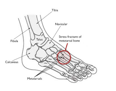 metatarsal-stress-fracture