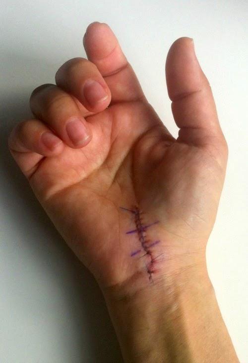 tejpa sår efter operation