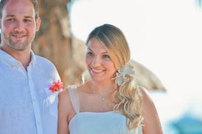 Mujer se queda calva por el estrés tras planear su boda