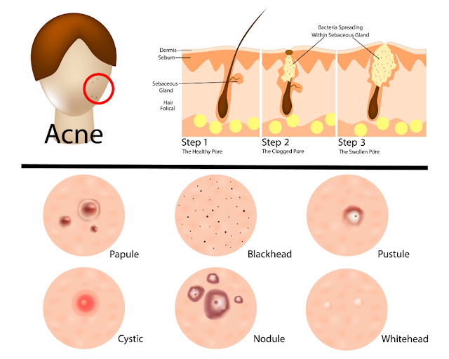 Symptoms of acne