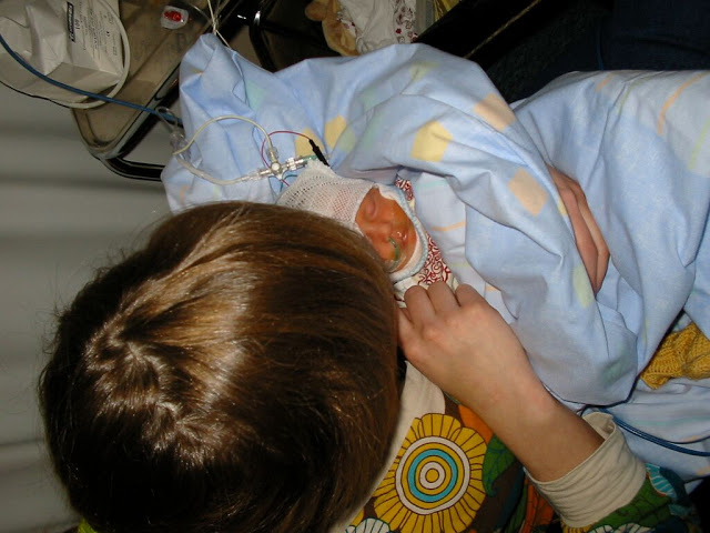 keskonen synnytyskertomus perätila
