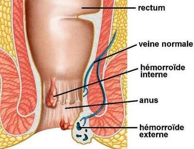 soigner des hémorroïdes