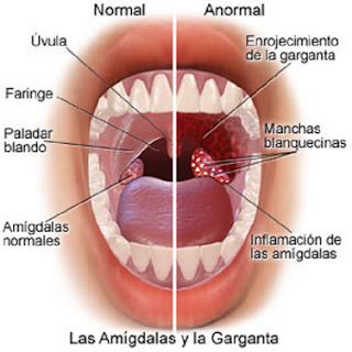 Obat tradisional faringitis